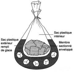 Les rappels sur le plastique de la bride du membre